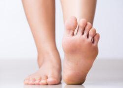 dolore piedi scarpe matrimonio